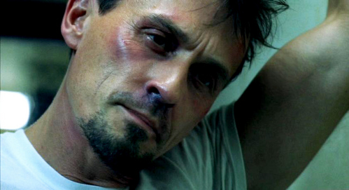 Rob Knepper as T-Bag all bruised