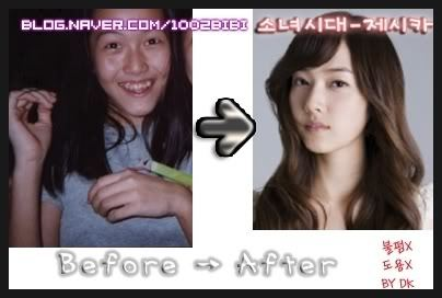 Did Jessica Jung Get Any Surgery Jessica Snsd Answers Fanpop