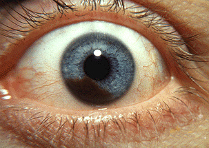 http://en.wikipedia.org/wiki/Eye_color http://en.wikipedia.org/wiki/Uveal_melanoma I don't know what your friend means da 'black circles', but I tried my best. Uveal melanoma is a cancer that is most common for blue and gray-eyed persons. te might have melanoma in your iris. The iris is the color area around, da the way. Here's a picture. Try looking in the mirror? If not, try googling. I doubt we'd know.