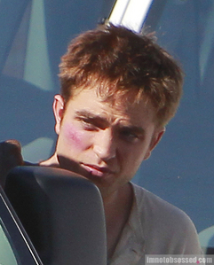 Who beat up my beautiful baby?Don't worry,I'll take really good care of him<3