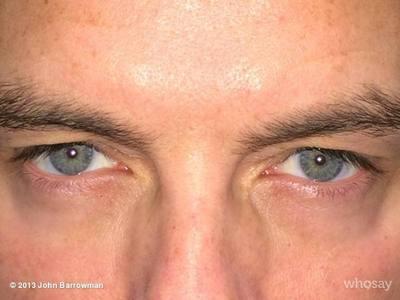 Barroweyes - Best eyes EVER