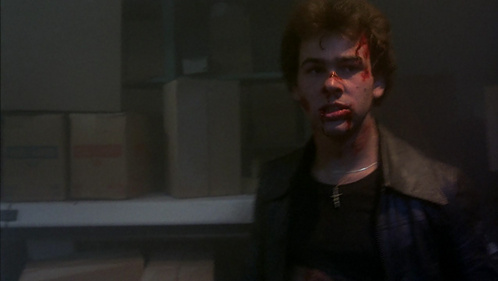 Paul looking rough and bleeding after he attacked a gang from jumping his friend.