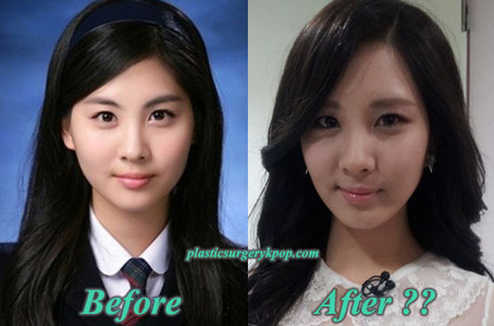 Who Has No Plastic Surgery In Snsd Girls Generation Snsd Answers
