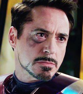 Iron Man with a black eye