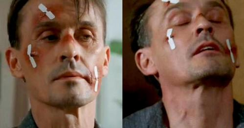 Post a pic of your fav actor hurt/physically wounded