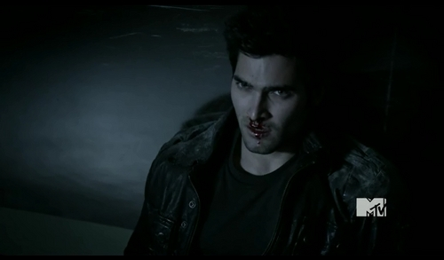 Post a Pic of an actor with a bloody nose