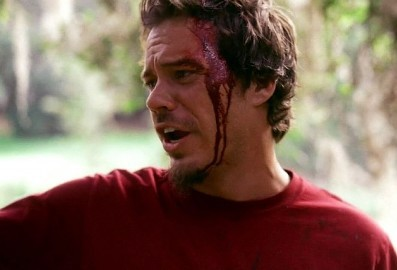Post a pic of your actor bleeding.