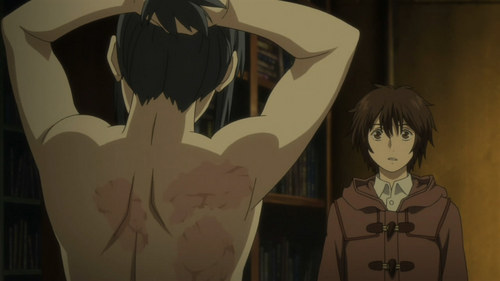 Post an anime character who has a scar on their body