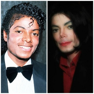 Michael: Before and After Vitiligo
