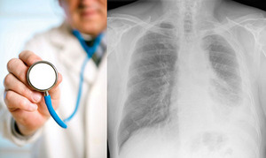 Mesothelioma affects the lungs, heart, abdomen and other organs.