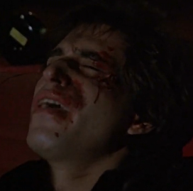 Joey Wird angezeigt bloody wounds on his face