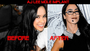 AJ Lee before and after her chin maulwurf implant