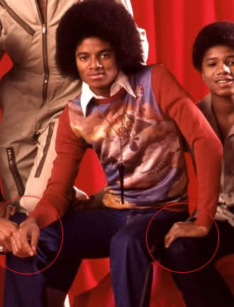 Michael Jackson fond d'écran possibly with a bearskin titled || The Vitiligo Proof ||