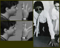 || The Vitiligo Proof || - michael-jackson photo