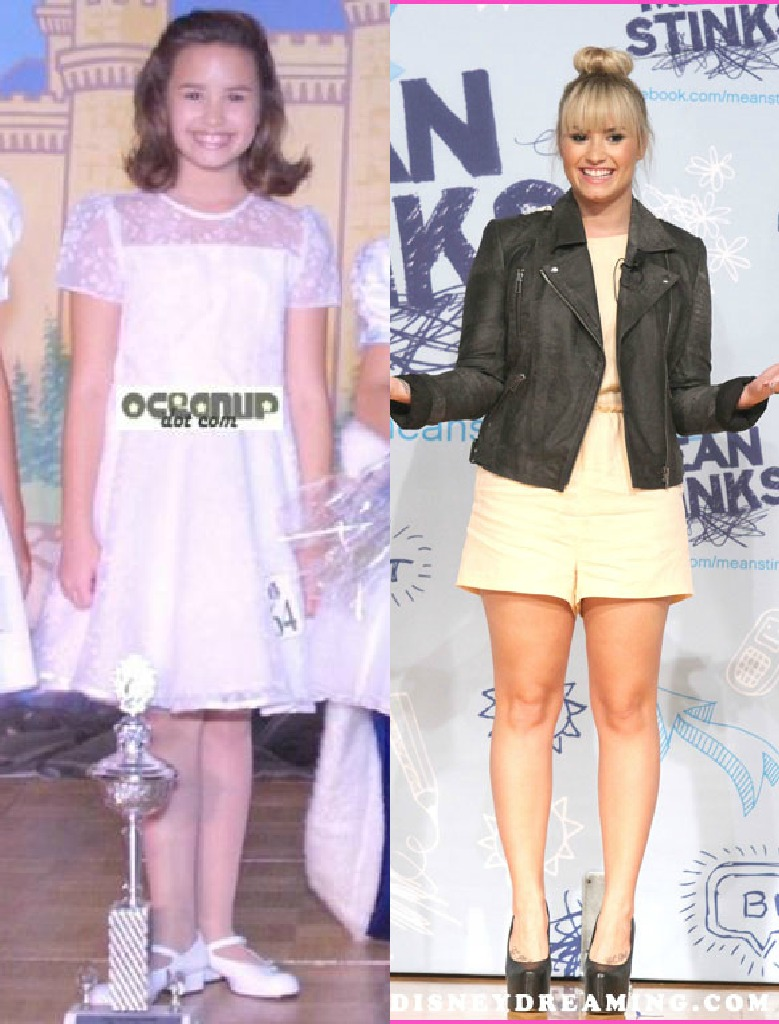 Demi Lovato Before And After