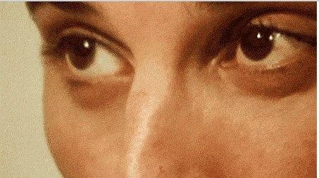 Freddie's eyes