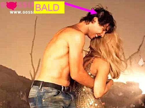 Nadal bald and embrace with Shakira...