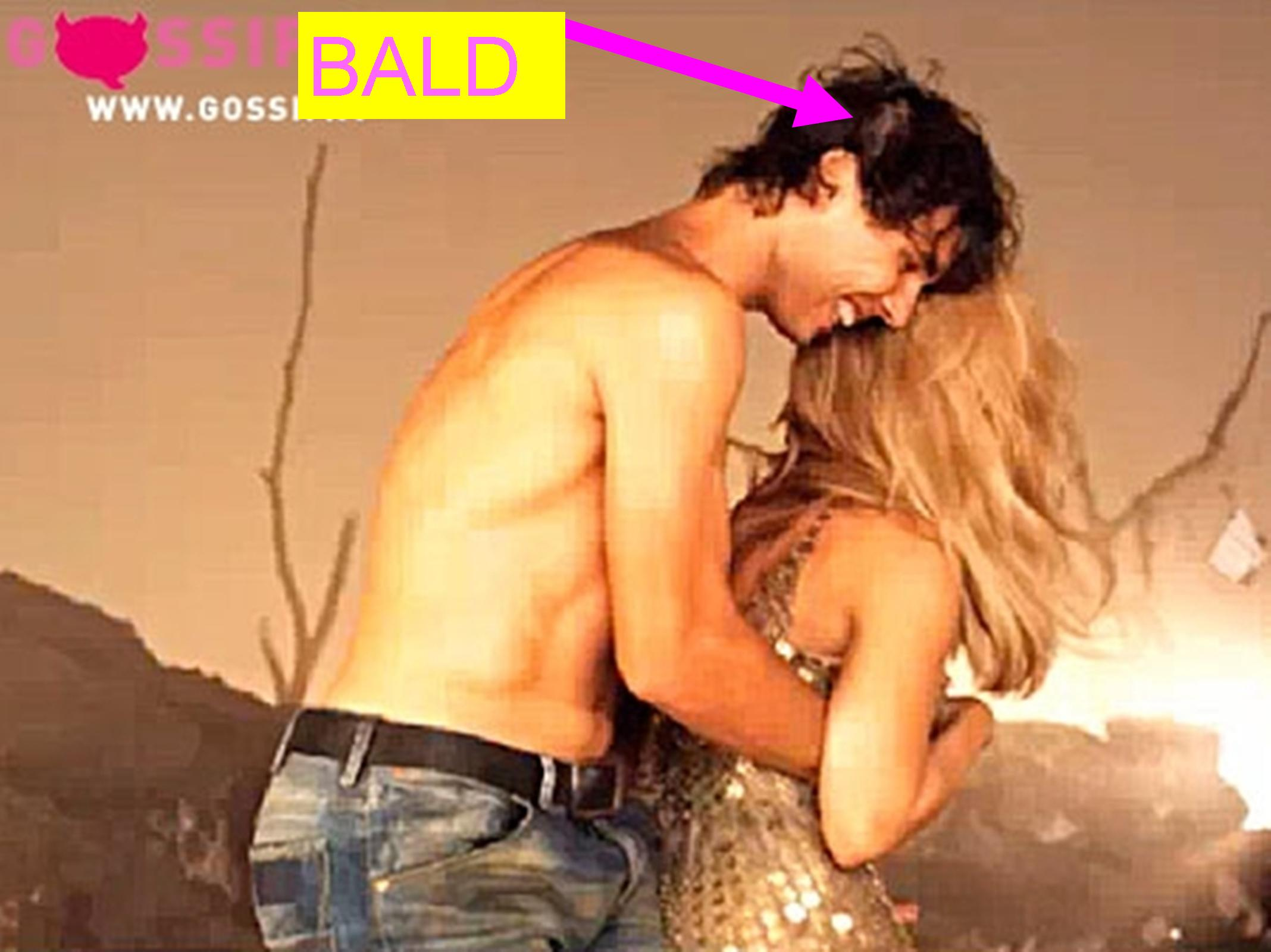 Nadal bald and embrace with Shakira..