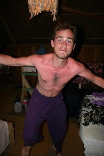 Rider's sunburn