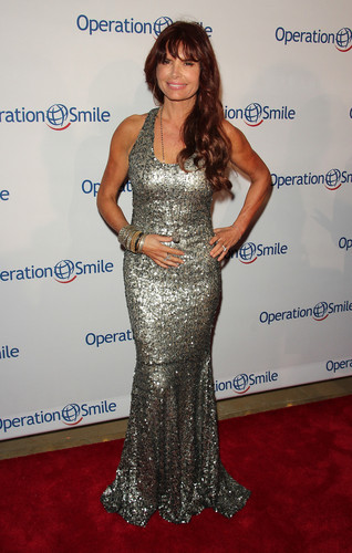 Operation Smile's 30th Anniversary Gala 2012