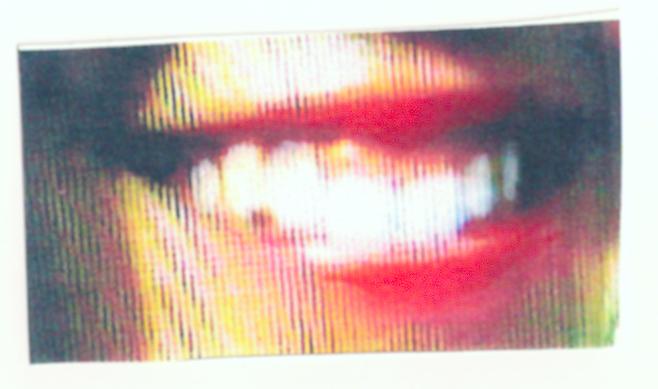 Debbie's Pretty Teeth