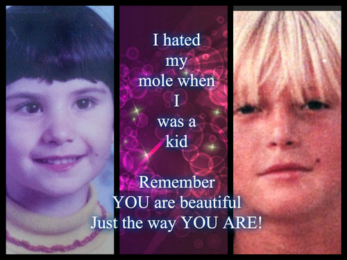 môle, mole