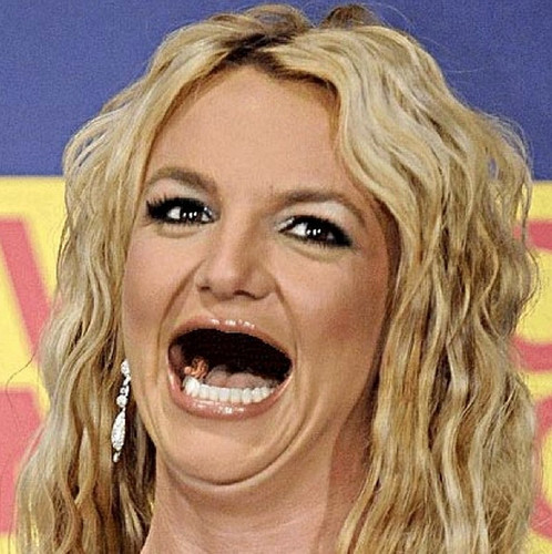 Celebs With No Teeth!