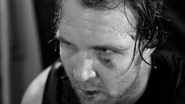 Dean Ambrose's Eye Injury