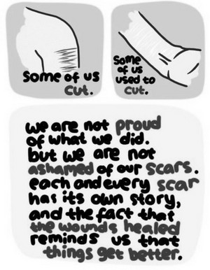 cuts scars story