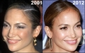 JLo then and now before and after 2001 2012