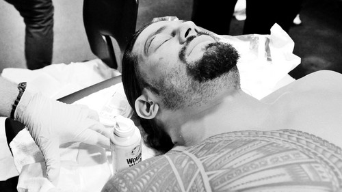 The Shield (WWE) wallpaper entitled Roman Reigns receives sutures