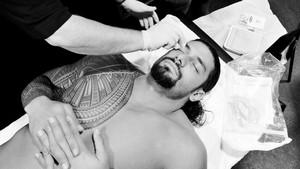 Roman Reigns receives sutures