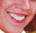 Debbie's teeth