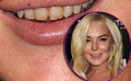 UH oh, LINDS might be losing her teeth again - lindsay-lohan photo