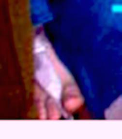 Linda's Foot