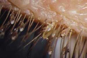 Pubic lice (Phthirius pubis) in action!