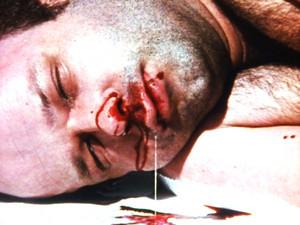 Lothar Schramm dying