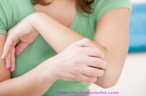 Itchy winter skin disease