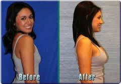Before and after breast enhancement pills photos Breast Enhancement Pills: Before and After Effects for Women