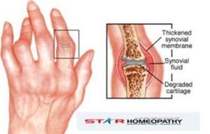 arthritieslogo.JPG