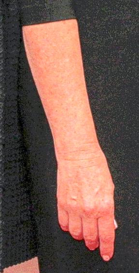 Debbie's Arm