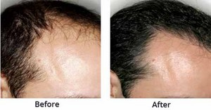 Best Hair Transplant Clinics in Kolkata - hair-transplant