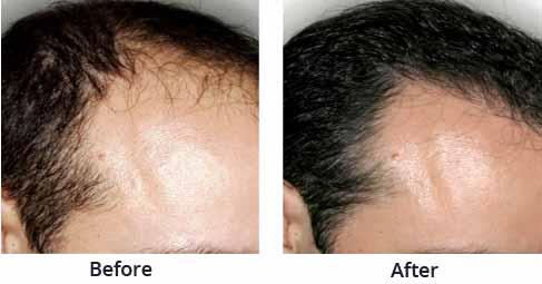 Best Hair Transplant Clinics in Kolkata - hair-transplant