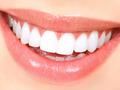 teeth whitening - random photo