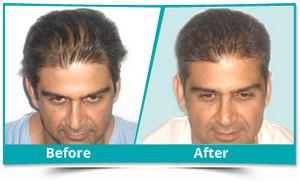 Hair transplant Cost in Chandigarh