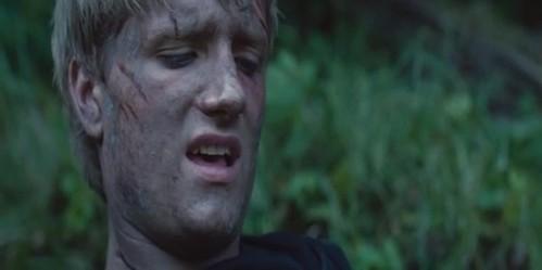What Peeta's leg was hurt?