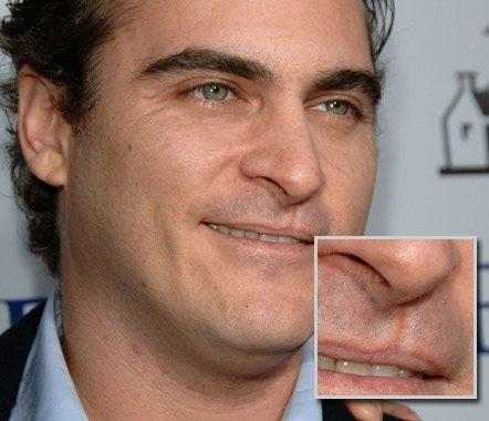 True или False: The scar on his lip is the result of a repaired cleft lip.