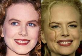 In February 2001 Cruise filed for divorce from Kidman, how many days before the couple's 10th wedding anniversary?