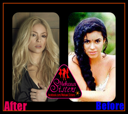 shakira before and after surgery
