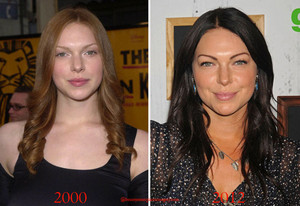 Laura Prepon - Plastic Surgery